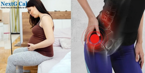 Bà bầu bị đau khớp háng bên trái phải