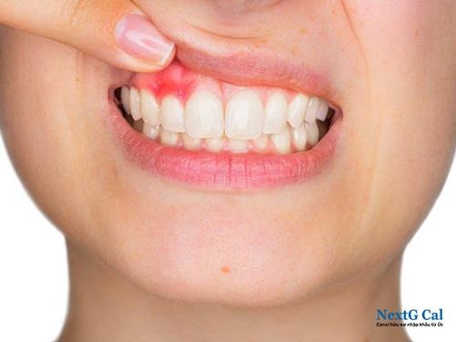 Bà bầu bị sưng nướu răng trong cùng