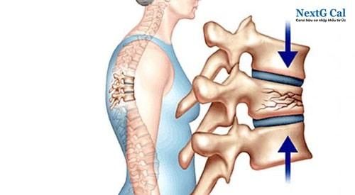 Bệnh loãng xương có chữa được không