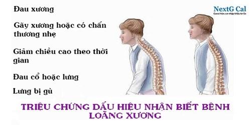 Bệnh loãng xương triệu chứng thế nào