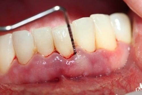 Bị viêm chân răng khi mang bầu