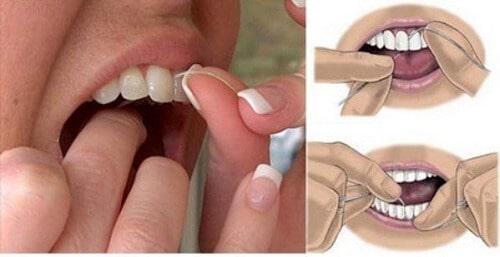 Cách trị viêm chân răng cho bà bầu