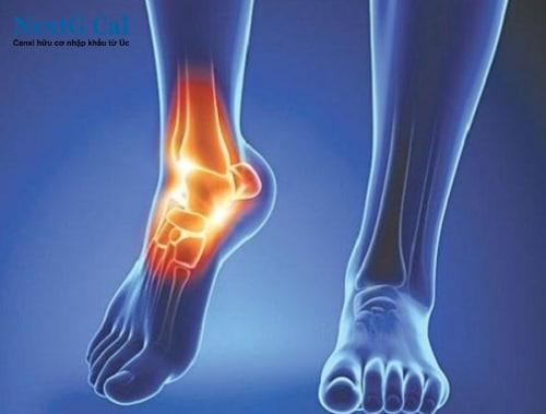 Bệnh viêm khớp cổ chân là gì