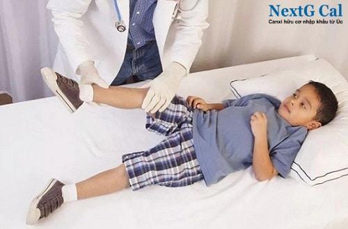 Cách điều trị viêm khớp háng ở trẻ em