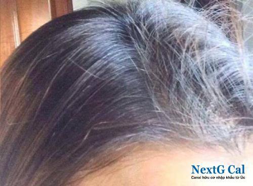 Chứng rụng tóc sau sinh bao lâu thì hết