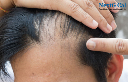 Hiện tượng rụng tóc ở nam giới