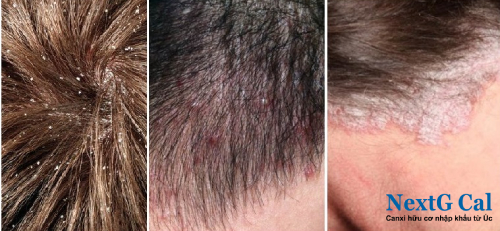 Nguyên nhân dẫn đến rụng tóc ở nam giới