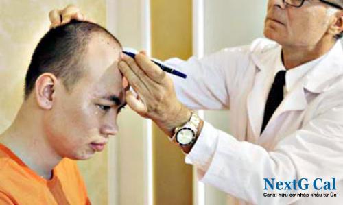 Thuốc chữa rụng tóc từng mảng hiệu quả