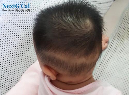 Trẻ bị rụng tóc vành khăn là gì