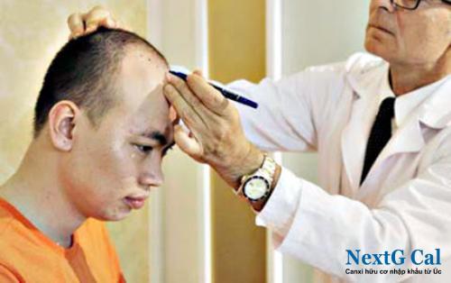 trị rụng tóc nam nhiều