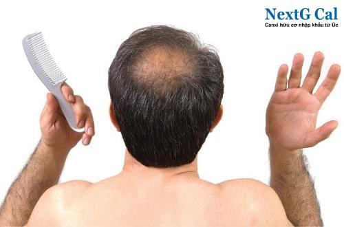 Triệu chứng rụng tóc ở nam giới
