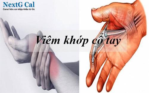 bệnh viêm khớp cổ tay là gì