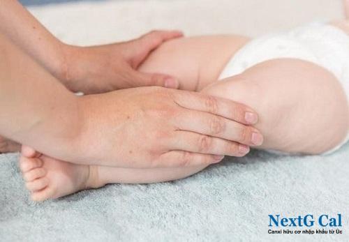 Cách chữa chân vòng kiềng cho bé
