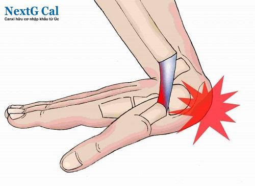 Nguyên nhân viêm khớp cổ tay phải