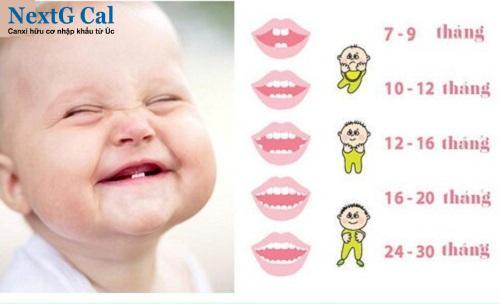 Trẻ chậm mọc răng vĩnh viễn