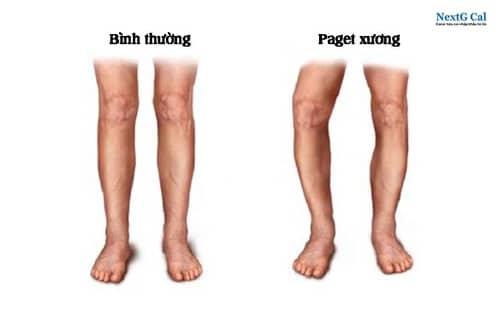 Bệnh paget xương là gì