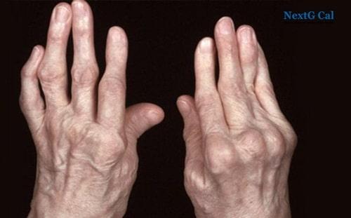 Bệnh viêm đa khớp dạng thấp là gì
