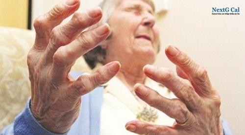 Bệnh viêm khớp dạng thấp là gì