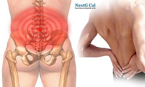 Bị viêm cột sống dính khớp có chữa khỏi không