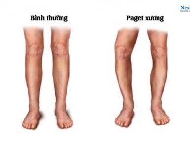 Cách điều trị paget ở xương