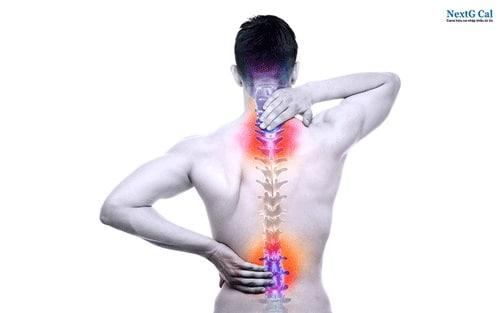 Dấu hiệu bị vôi hóa cột sống đau