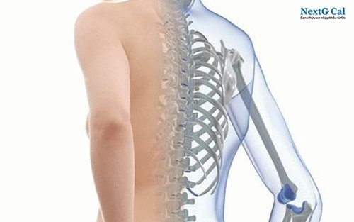 Mắc bệnh xương thủy tinh là gì