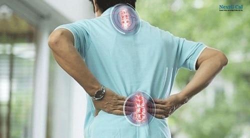Nguyên nhân bị vôi hóa cột sống lưng