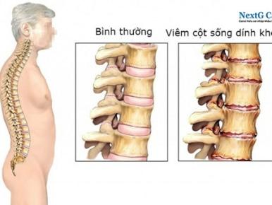viêm cột sống dính khớp bệnh học