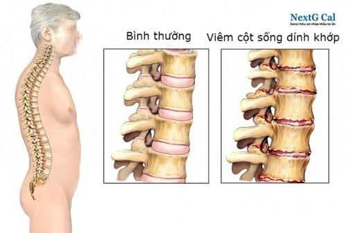 xq viêm cột sống dính khớp thể trục