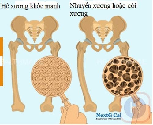 Chứng nhuyễn xương