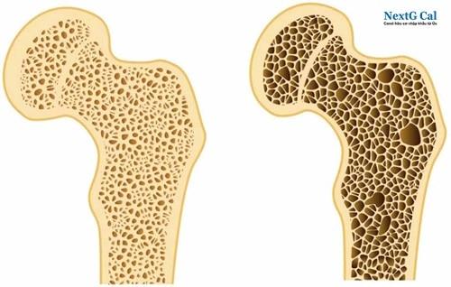 Nguyên nhân nhuyễn xương là gì