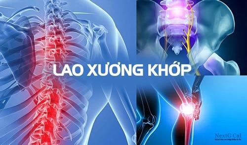 Bệnh lao cơ xương