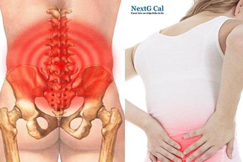 Bệnh thoái hóa cột sống thắt lưng triệu chứng