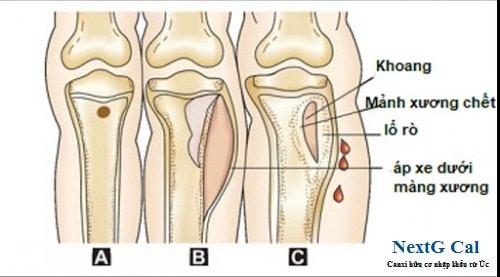 Triệu chứng viêm tủy xương nhiễm khuẩn