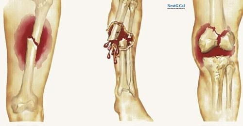 Ung thư xương có mấy giai đoạn