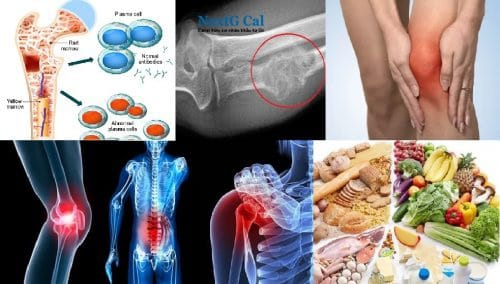Bị ung thư xương nên ăn gì và kiêng ăn gì