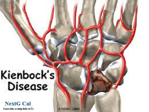 bệnh kienbock là gì