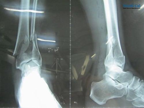 Bị gãy xương mác cổ chân