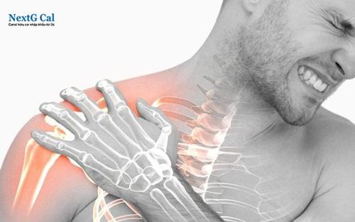 Cách điều trị gãy xương đòn vai
