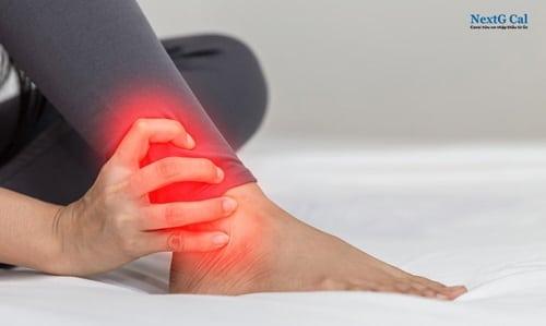 Gãy xương mác chân trái