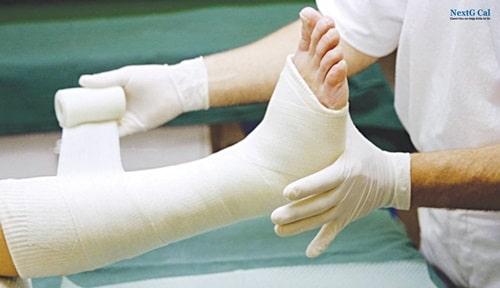 Gãy xương mác có cần bó bột không