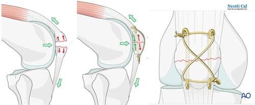 Phẫu thuật gãy xương bánh chè