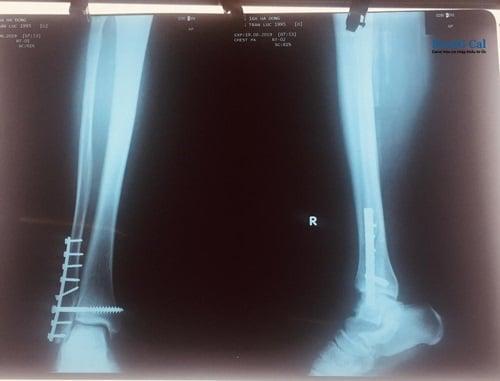 Phẫu thuật gãy xương mác cẳng chân