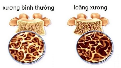 Bổ sung canxi không có vitamin d3 và k