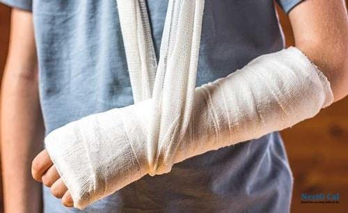 Gãy xương cẳng tay bó bột bao lâu