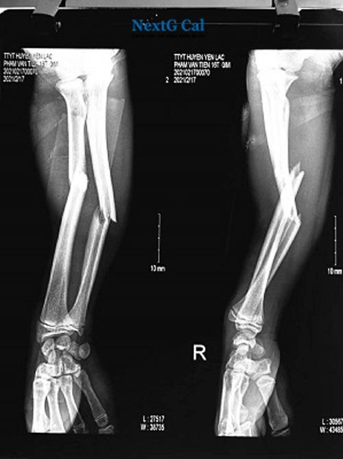 Hình ảnh gãy xương cẳng tay