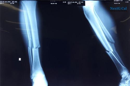 Hình ảnh xương chày bị gãy
