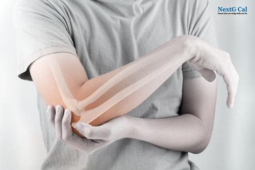 Khi gặp người bị gãy xương cẳng tay