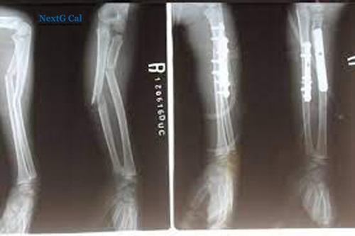 Phẫu thuật gãy xương cẳng tay