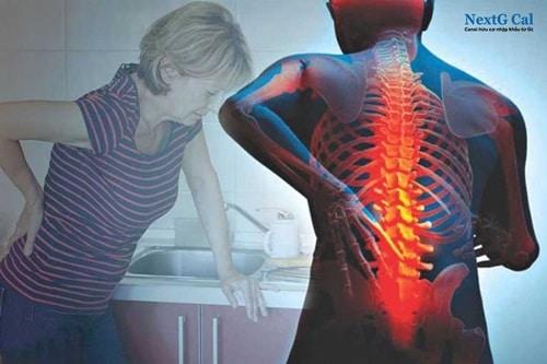 Triệu chứng gãy xương cột sống thắt lưng